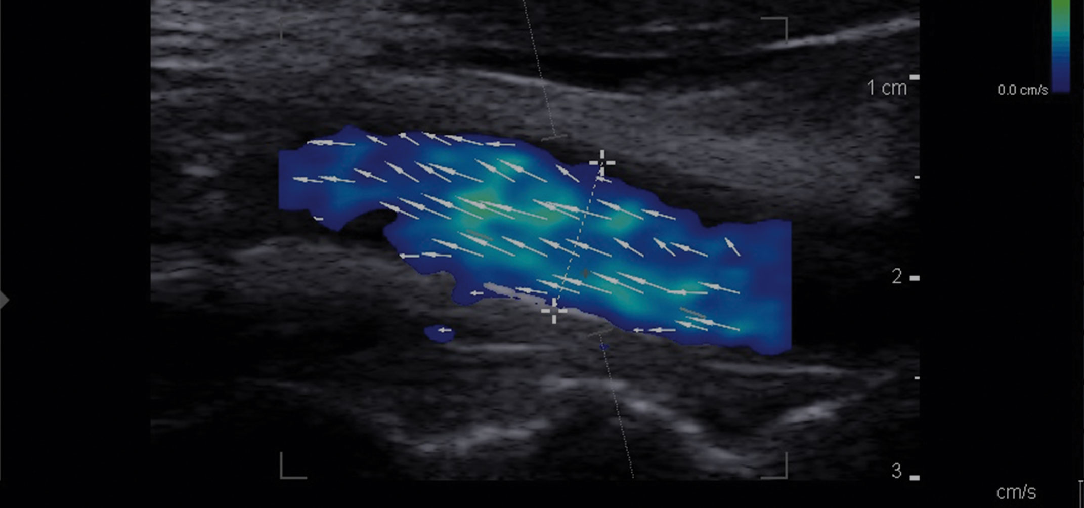 Vector Flow Imaging Case Study: Technology Developed for Clinical Impact