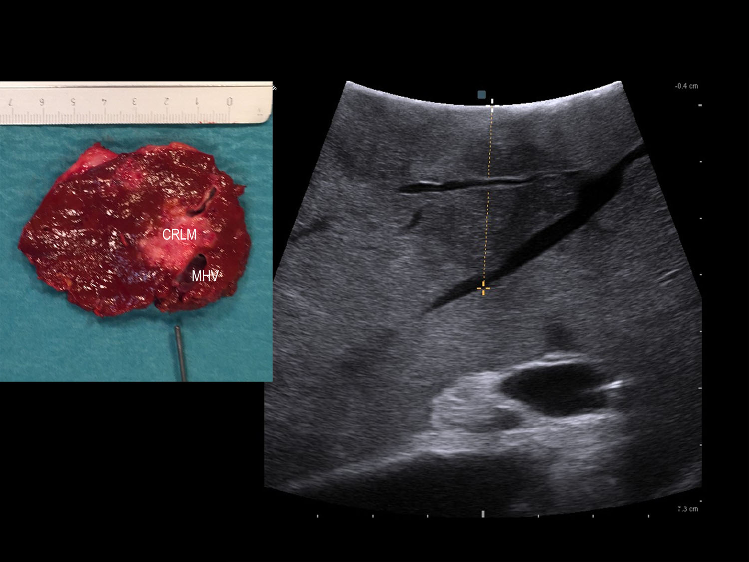 Use of Ultrasound During Complex Redo Open Liver Resection