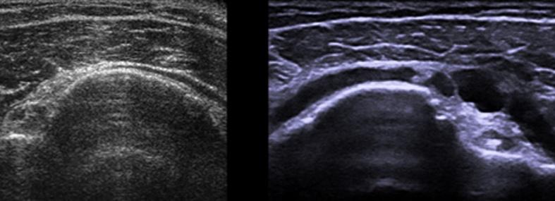 old-ultrasound-comparison