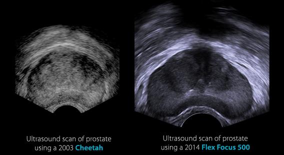 prostate_comparison